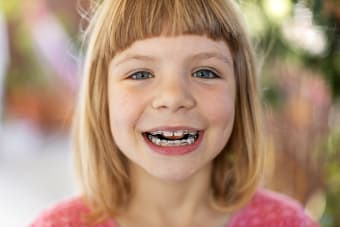 Phase 1 Orthodontic Treatment For Kids & Invisalign First