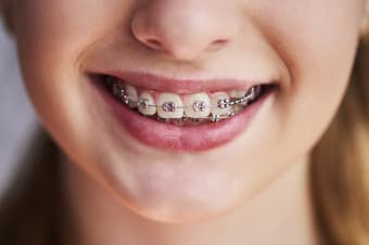 How do braces straighten your teeth?