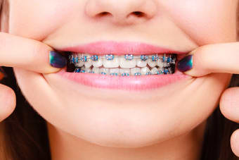 Colourful Elastics Help to Make Braces Fun