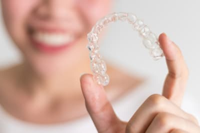 5 Ways Invisalign Can Change Your Smile