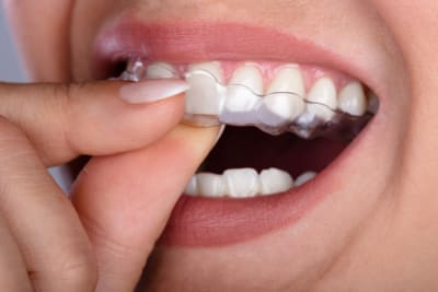 Facts Everyone Should Know Before Choosing a Clear Aligner