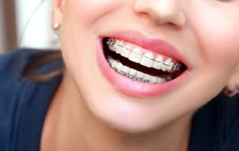 Braces vs. Clear Braces vs. Clear Aligners: Which treatment is right for me?