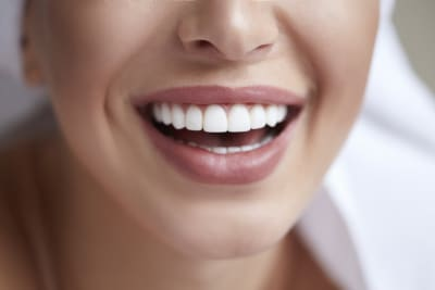 What's the difference between home whitening and professional whitening?