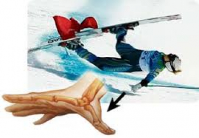 Ski Injury Spotlight: Skier's Thumb