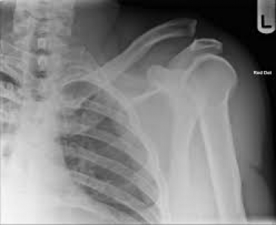 Ski Injury Spotlight: Acromio-Clavicular (AC) Separations