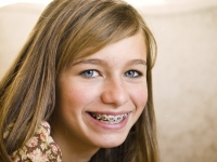 Orthodontics Options for Teens