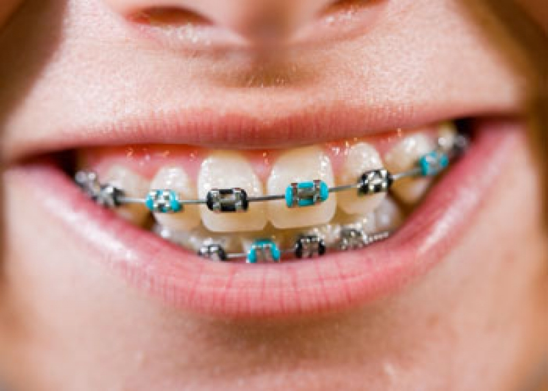 Choosing Colours For Your Braces Austin Heights Orthodontics