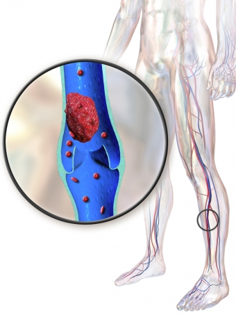 Understanding Deep Vein Thrombosis & its Risks