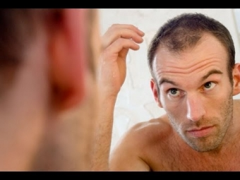 Understanding Hair Loss