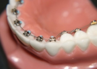 Snapshot of Orthodontic Treatment Options