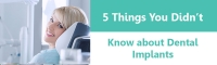 5 Things You Did Not Know About Dental Implants