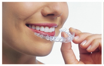6 Facts About Invisalign