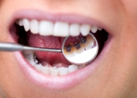 Lingual Braces For Teens
