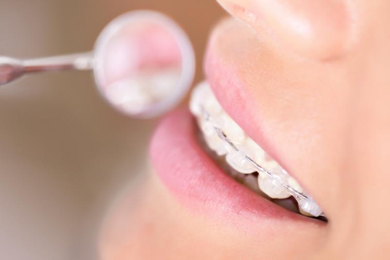 lingual braces vs translucent braces guildford orthodontic centre